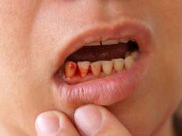 Let's-Know-Some-Reasons-for-Gums-Bleeding-on-successtuff